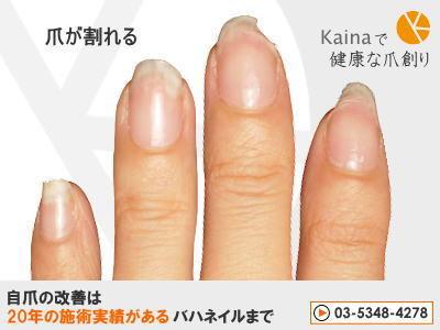 爪のお悩みまるごと解決  kainaで健康で元気な爪を創ろう-長年のジェルネイルで爪割れ・爪の異常