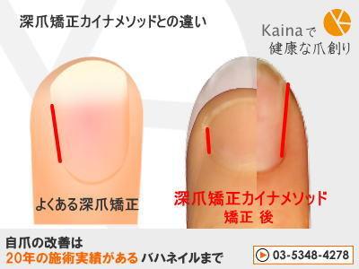 爪のお悩みまるごと解決  kainaで健康で元気な爪を創ろう-よくある深爪矯正との結果の違い