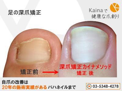 爪のお悩みまるごと解決  kainaで健康で元気な爪を創ろう-足の深爪矯正