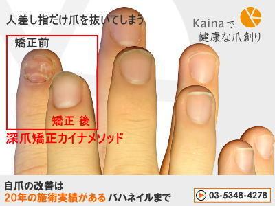 爪のお悩みまるごと解決  kainaで健康で元気な爪を創ろう-人差し指だけ爪を抜いてしまう