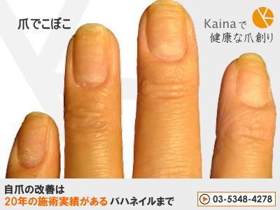 爪のお悩みまるごと解決  kainaで健康で元気な爪を創ろう-皮膚炎から爪でこぼこ ガタガタ画像