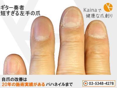 爪のお悩みまるごと解決  kainaで健康で元気な爪を創ろう-ギター奏者 短すぎる左手の爪