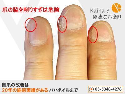 爪のお悩みまるごと解決  kainaで健康で元気な爪を創ろう-ギタリスト 短すぎる左手の爪