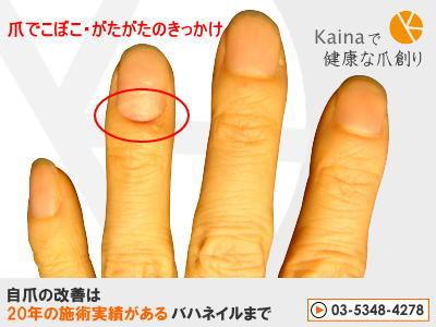爪のお悩みまるごと解決  kainaで健康で元気な爪を創ろう-爪でこぼこ・ガタガタの原因