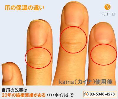 爪のお悩みまるごと解決  kainaで健康で元気な爪を創ろう-簡単ネイルケア 深爪・噛み癖卒業