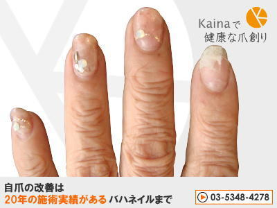爪のお悩みまるごと解決  kainaで健康で元気な爪を創ろう-ジェルネイルで爪が弱くなった