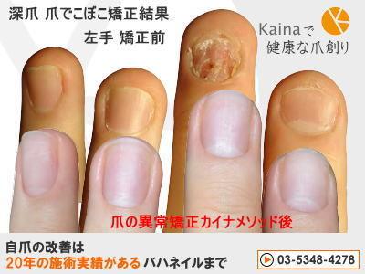 爪の変形 異常 爪でこぼこ矯正