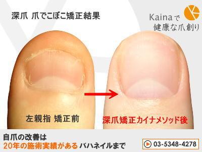 親指 爪の形 深爪 矯正 きれい