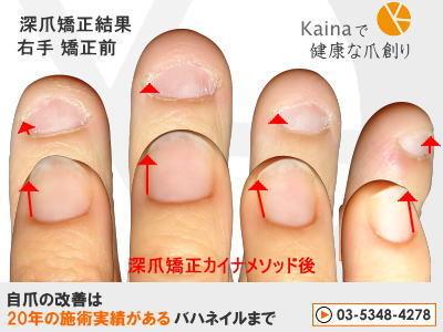 深爪 爪を噛む癖 爪のピンク大きく 画像
